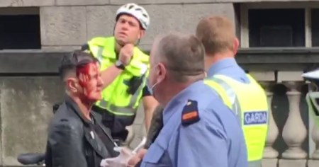 A photo of Izzy Kamikaze after she was assaulted by a far-right activist outside the Dáil in September.