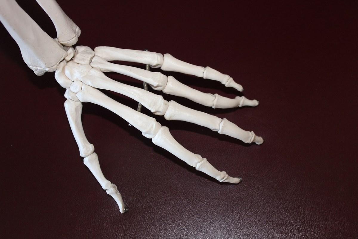 手首の変形性関節症?