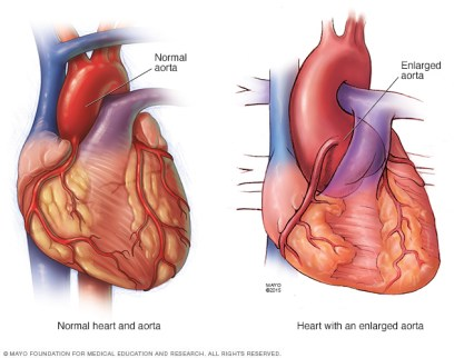 Image showing the difference between a normal heart & aorta, and heart with an enlarged aorta Image credit: http://www.mayoclinic.org/diseases-conditions/marfan-syndrome/symptoms-causes/dxc-20195415