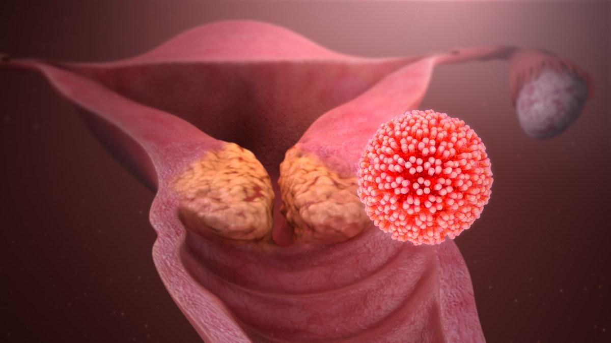 parazitii discografie tpb preparate de slăbire cu viermi