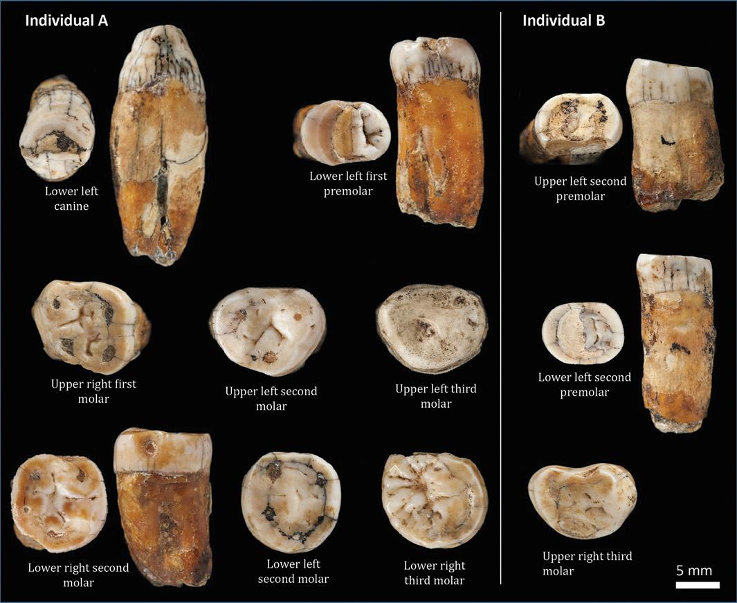 Reassessing Neanderthal teeth in Jersey