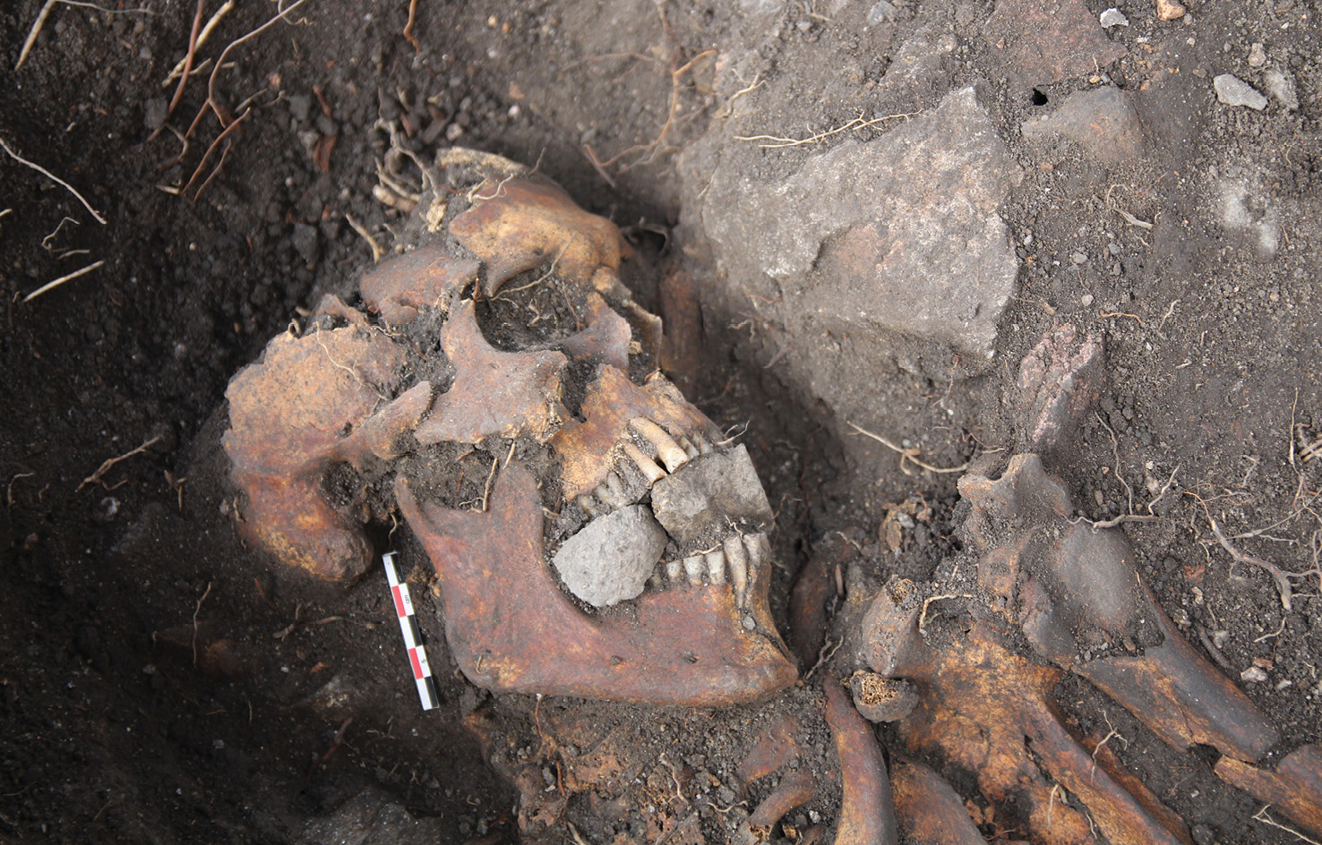 RIGHT This skeleton of a 55- to 75-year-old man dates back to the 14th century. He was buried in a shroud, with stones wedged into his mouth. Corpses that received comparable treatment are widely spread across Europe, and it is believed that the stones were intended in some way to protect against the undead.