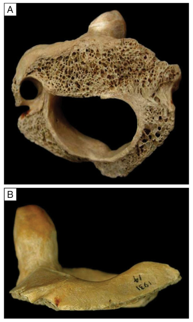 left At least seven people seem to have been decapitated at the cave during the Roman Iron Age. This vertebra has been cut by a heavy blow from a sharp-edged implement, possibly a sword or an axe.