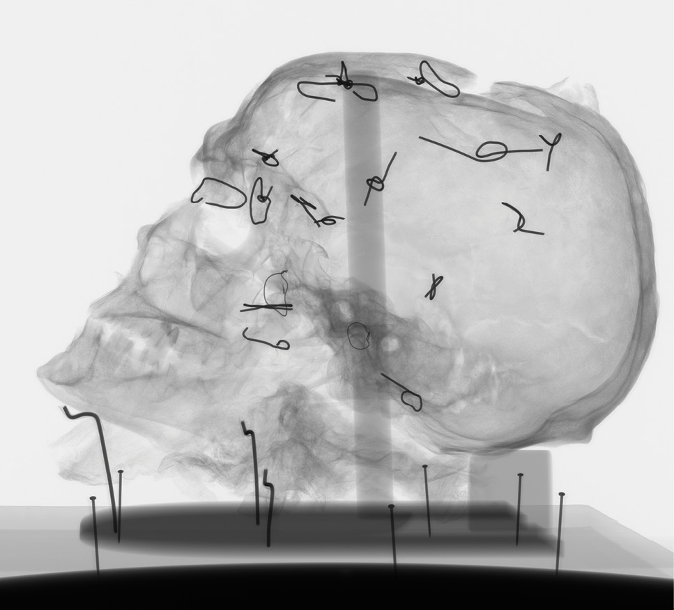 LEFT Recent CT scanning of Worsley Man's head shed new light on his injuries as well as illuminating the rather rudimentary conservation he had undergone in the past.