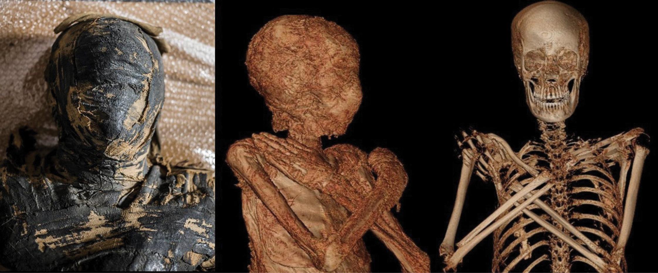 An expectant mummy