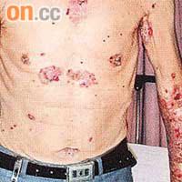 醫知健:致命皰瘡誤當水痘醫 - 太陽報