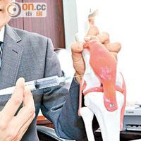 醫知健:膝痛注射補充液治退化性關節炎 - 太陽報
