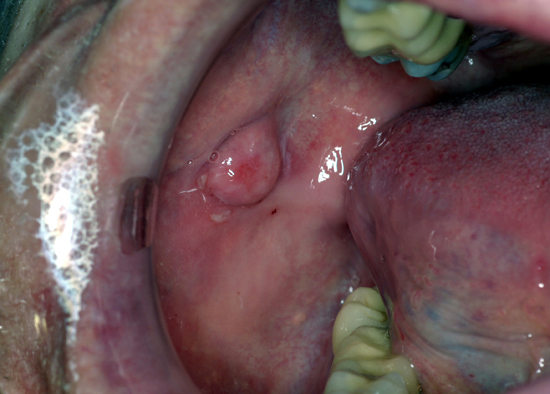 A fibroma is a commonly found lesion on the oral tissues.
