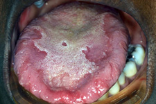 Geographic tongue represents the loss of the filiform papillae.