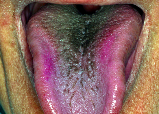 Antibiotics can be associated with the presence of hairy tongue.