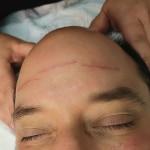 Dermal Micro-Needling Wrinkles