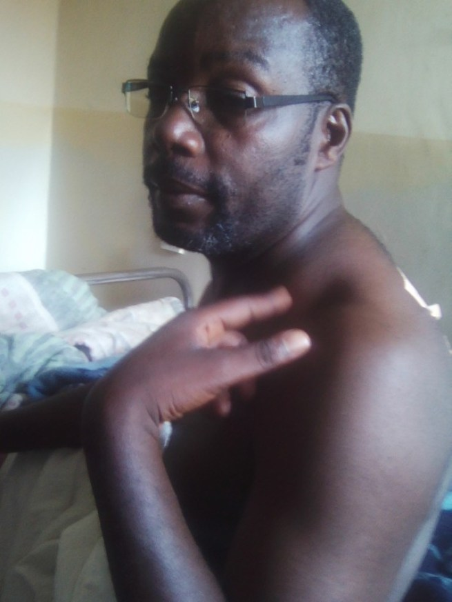 A male patient shot by thugs and is languishing in hospital because because there are no medical experts to remove bullet on his shoulder. Photo: The AfricaPaper/Henry Kijimwana Mhango
