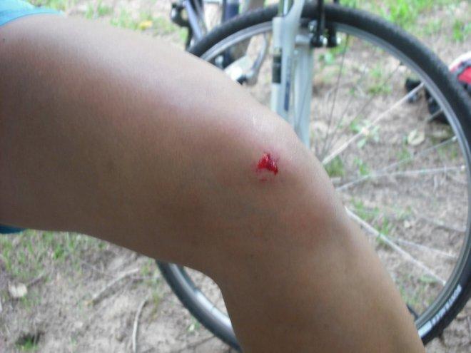 70691-bikerideaug2009003