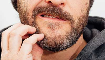 How to Stop Your Beard Itch