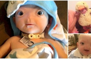 baby born with no nose 1
