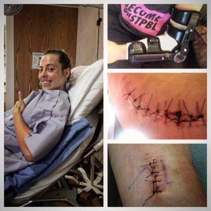 Ariel Stevens after elbow surgery