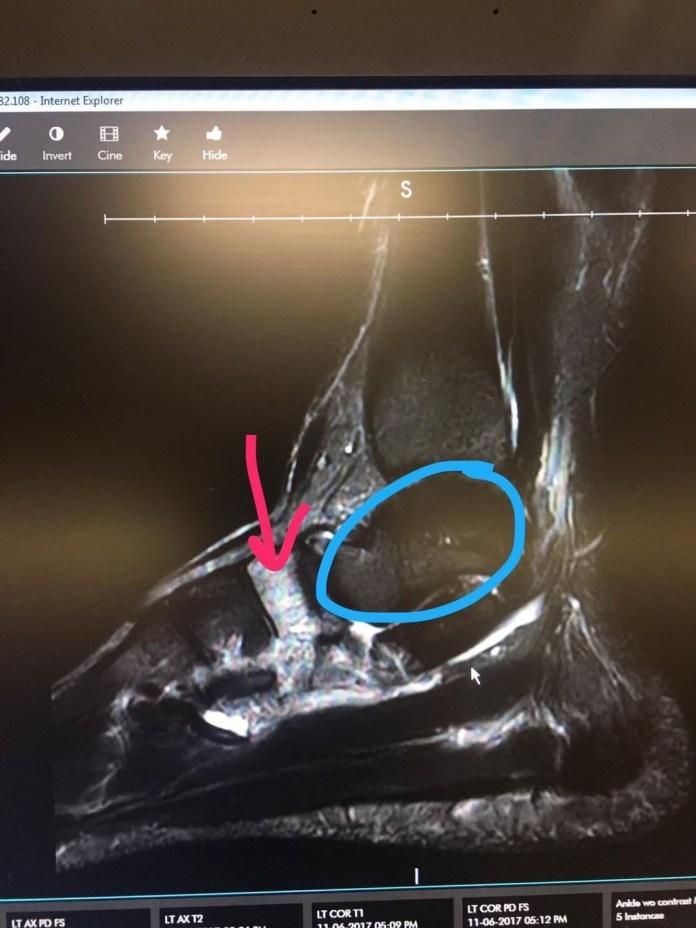 MRI of Alexis Johnson's left foot.