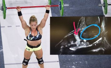 Alexis Johnson has stress reaction in left foot. Games photo courtesy of CrossFit Inc.