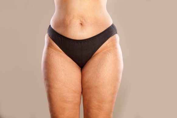 Your Body After Bariatric Surgery