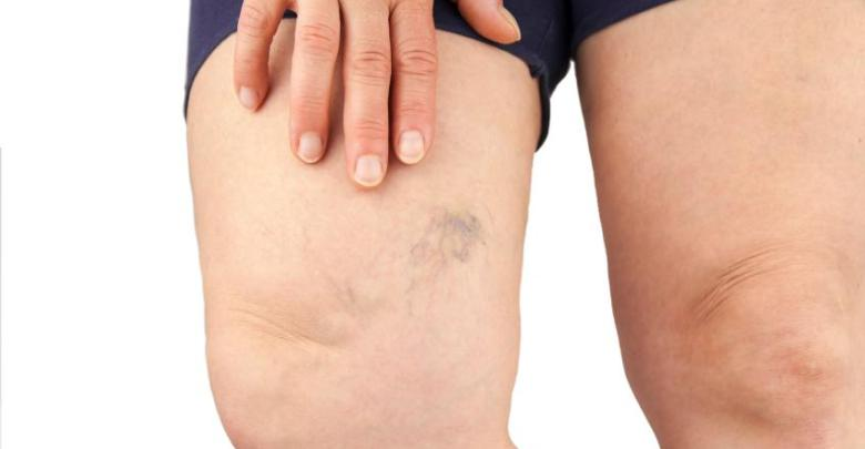How To Treat Varicose Veins After Weight Loss Surgery Bariatricbuzz