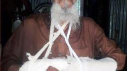 ভরণপোষন চাওয়ায় বৃদ্ধ বাবাকে পিটিয়ে দুই হাত ভেঙে দিল ছেলে