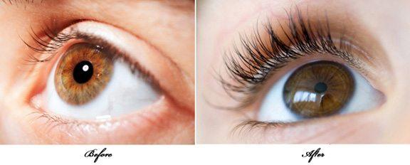 eye-lash-growth