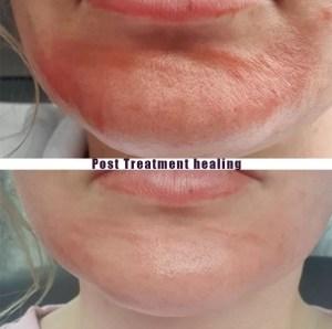 Mini Post Treatment Healing 0 - Post Treatment Healing