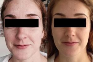 Mini Rejuvenation Before After - Rejuvenation-Before-After
