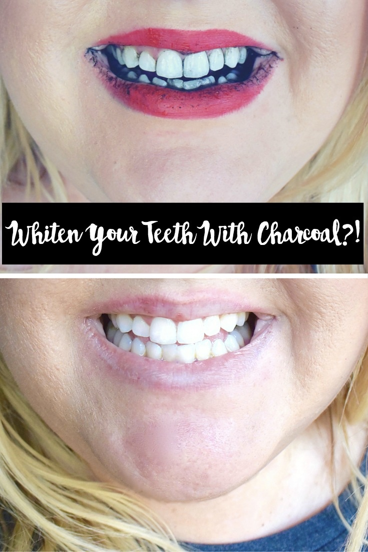 Whiten Your Teeth with Charcoal?!
