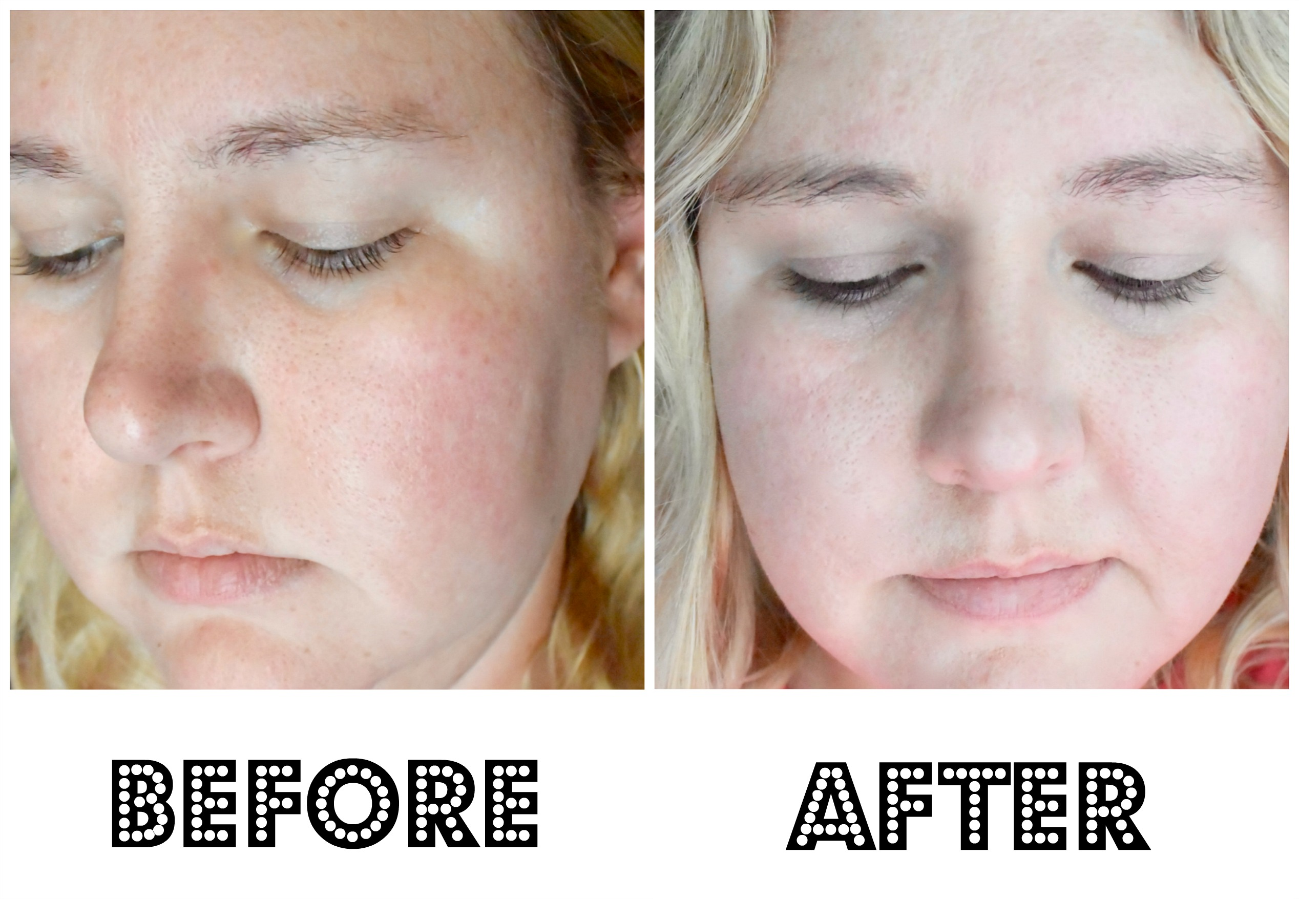 Garnier SkinActive® Clearly Brighter™ Brightening & Smoothing Daily Moisturizer | Before and After Pictures