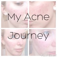 My Acne Journey