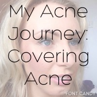 My Acne Journey: How I cover my scarring and redness