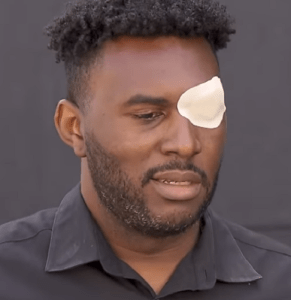 Christopher Bailey was severely beaten by 6-7 Los Angeles County deputies. He has filed a civil lawsuit.