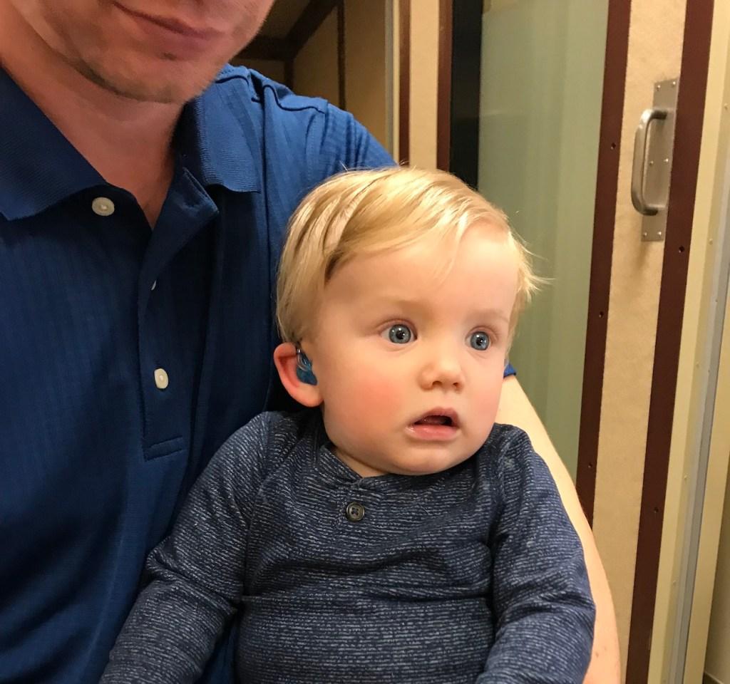 hearing loss baby