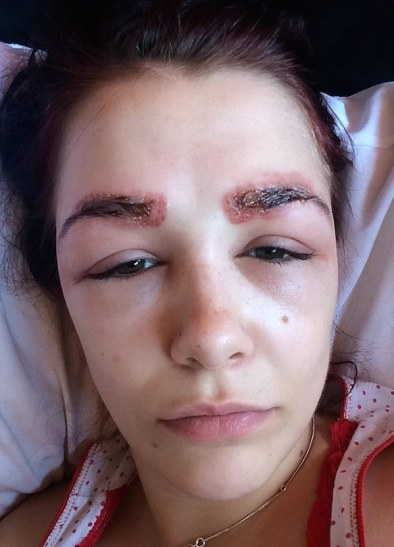 2ADFEB1A00000578-3175932-Polly_Smith_suffered_a_severe_allergic_reaction_leaving_her_with-a-32_14379987731741