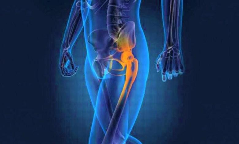 orthopaedic implants manufacturers
