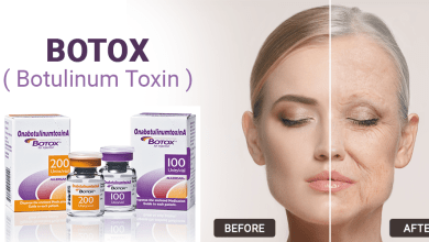 Photo of What is Allergan Botox & why people are talking about it?