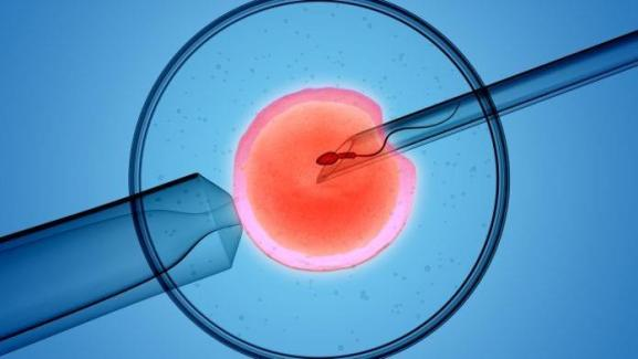 Cost of IVF in Jaipur at Aastha Fertility