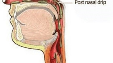 Photo of Post Nasal Drip – What Causes it?