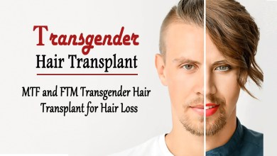 Photo of MTF and FTM Transgender Hair Transplant for Hair Loss