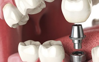 Photo of An Overview of the Features of Medicare Dental Plans