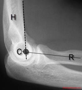 anterior humeral line