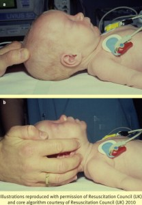 Neonatal Airway Positioning