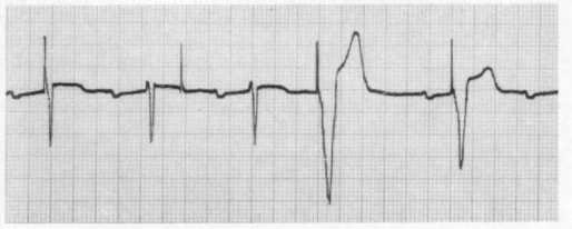 Undersensing. Note, the second pacing spike does not result in ventricular depolarization (not from failure to capture) because the pacing attempt occurs only 260 ms after the intrinsic QRS complex and the ventricle is refractory.
