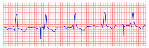 Ventricular undersensing. Failure of appropriate ventriculation inhibition