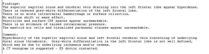 Non-contrast CT-brain report