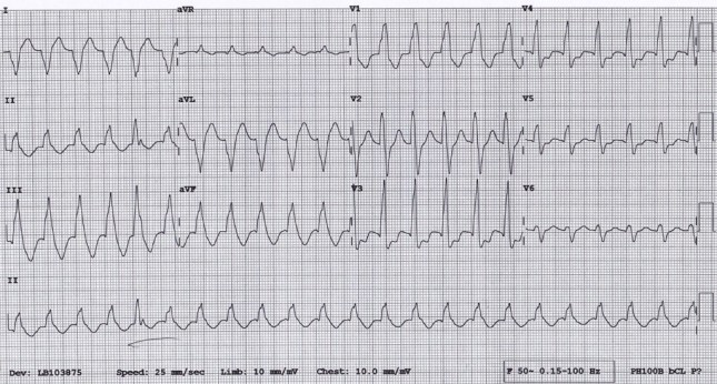 Broad complex tachycardia at a rate of 136 per minute. RAD. Underlined complex (#5) concerning for AV dissociation.