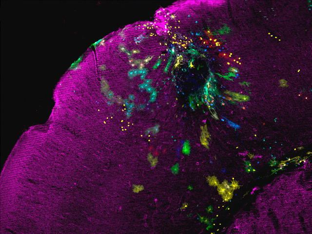 The injury site (dark sphere) can be seen surrounded by multi-coloured astrocytes. From: Martín-López et al. PLoS ONE 8(9) .