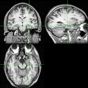 Human hippocampus MRI in 3 different planes (marked by green cross)