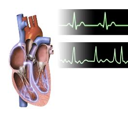 Top: Normal heart activity. Bottom: Heart fibrillation